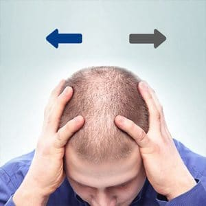 The Differences Between Hair Transplants And Hair Replacement Systems