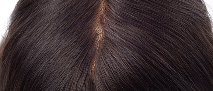 medical wig