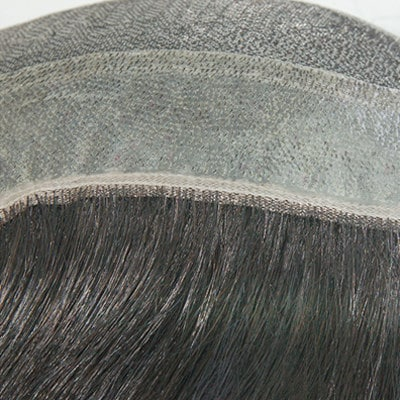 Underventilated Hair of Hair Replacement Systems