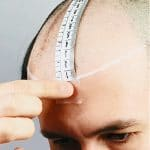 Guidance on Scalp Measurement for Hairpieces