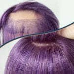 Survival Guide for Hairpieces with a Broken Base and Hair Loss