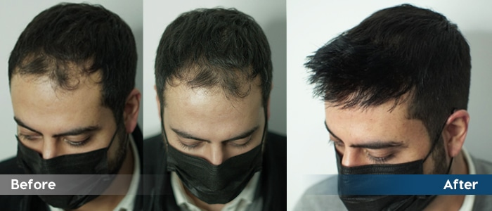 hair system before and after