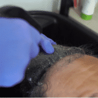 remove-the-hair-system-from-clients-head