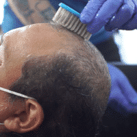 cleaning-the-scalp-with-a-fingernail-brush